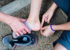 Evita las molestas ampollas al correr